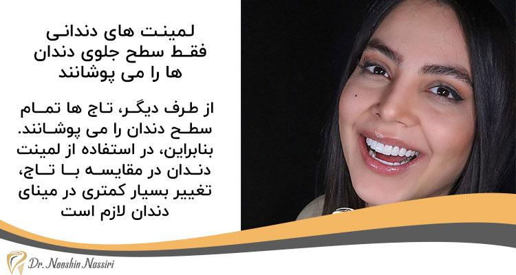 لمینت دندان برای اصلاح طرح لبخند