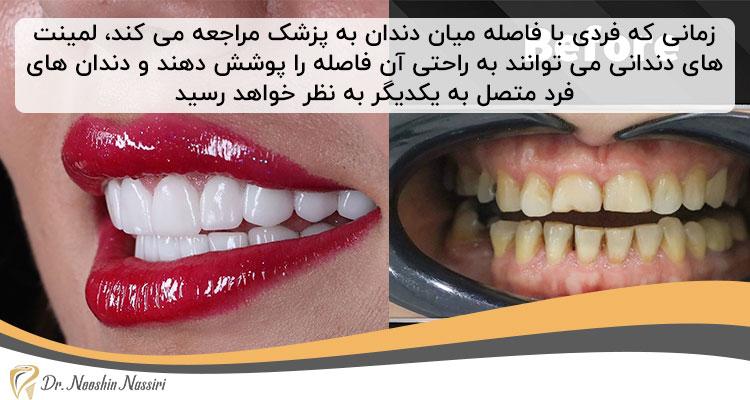 پر کردن فاصله دندان ها با لمینت دندان