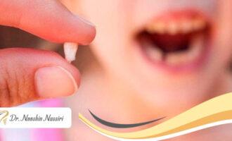 دندان شیری و نیاز به عصب کشی