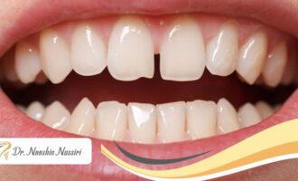 فاصله بین دندان ها و برطرف کردن آن