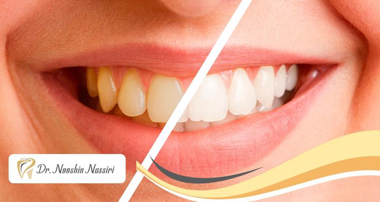 روش نوین ایرفلو برای جرم گیری دندان ها و برداشتن استین چیست