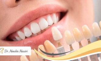 انتخاب رنگ لمینیت دندان