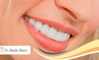تفاوت لومینیرز و لمینیت دندان