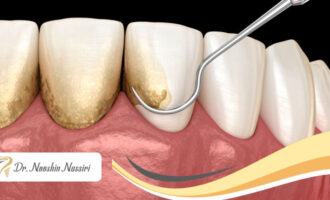 از بین بردن جرم دندان و جرمگیری دندان