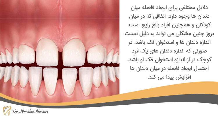 دلایل مختلف ایجاد فاصله بین دندان ها