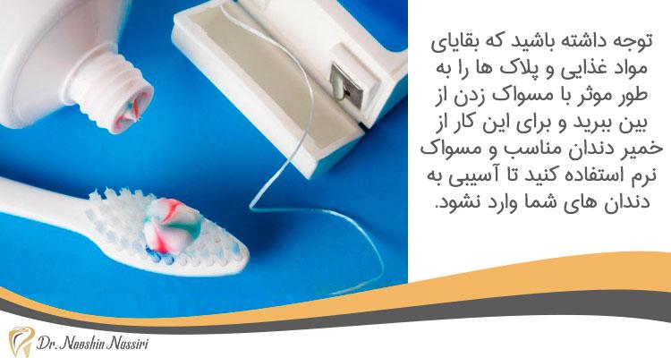 استفاده از مسواک و نخ دندان مناسب برای حفاظت از کامپوریت ونیر و لمینیت سرامیکی