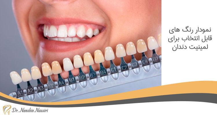 نمودار رنگ های قابل انتخاب برای لمینیت دندان
