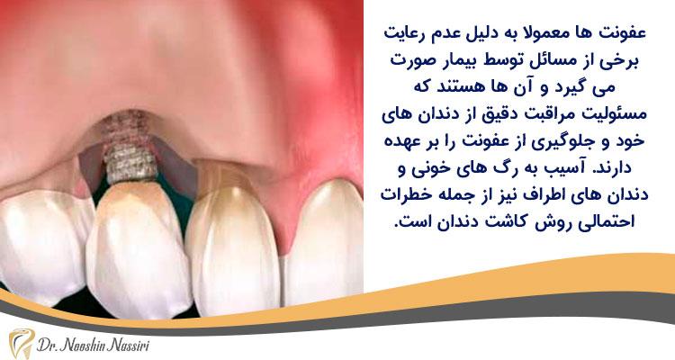 عفونت لثه از ریسک های ایمپلنت دندان