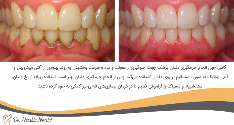 قبل و بعد از جرمگیری دندان