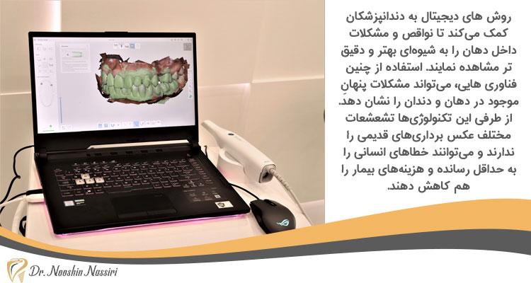 تصویر برداری از داخل دهان در دندانپزشکی دیجیتال