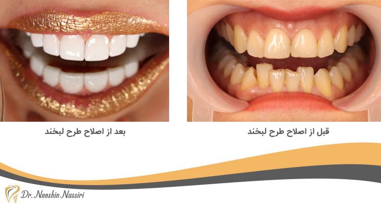 قبل از اصلاح طرح لبخند و بعد از آن در کلینیک دندانپزشکی دیجیتال دکتر نوشین نصیری