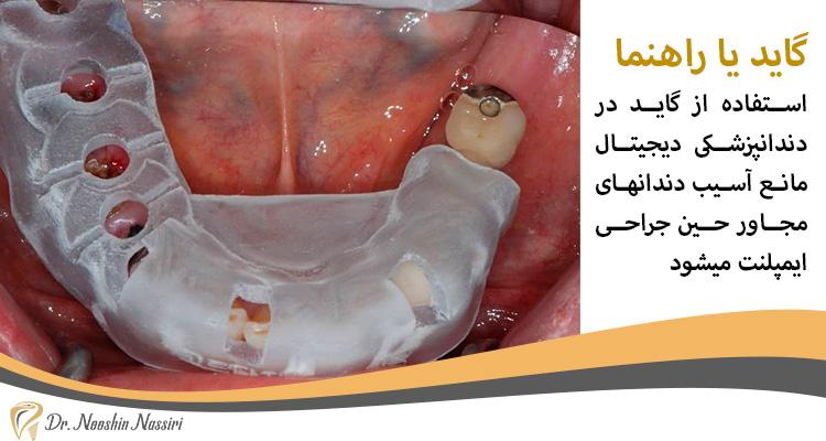 گاید جراحی برای ایمپلنت دیجیتال دندان