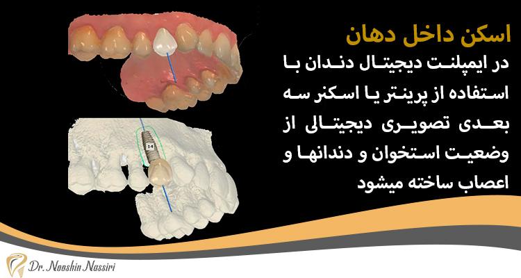 پرینتر سه بعدی و اسکن داخل دهان دکتر نصیری