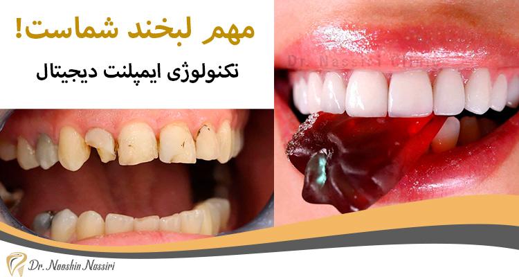 ایمپلنت دیجیتال دندان دکتر نوشین نصیری