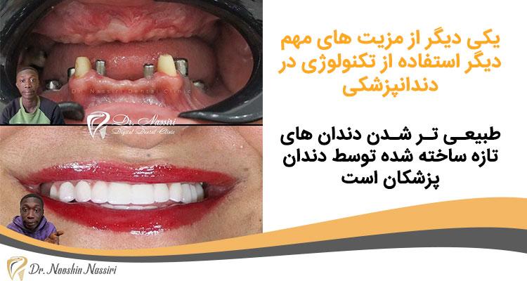 طبیعی تر شدن دندان های ساخته شده در دندانپزشکی دیجیتال دکتر نوشین نصیری