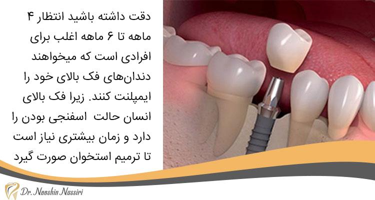 بهترین زمان کاشت ایمپلنت دندان