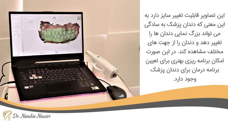 اسکن دیجیتال دندان در دندانپزشکی دیجیتال