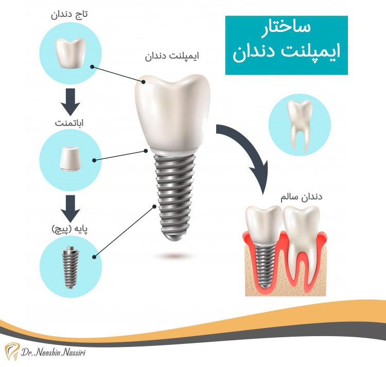 اینفوگرافی برای ساختار ایمپلنت دندان
