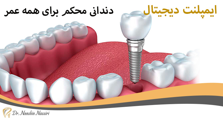 ایمپلنت دیجیتال دندانی محکم برای همه عمر