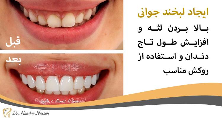 قبل و بعد از بالا بردن تاج دندان