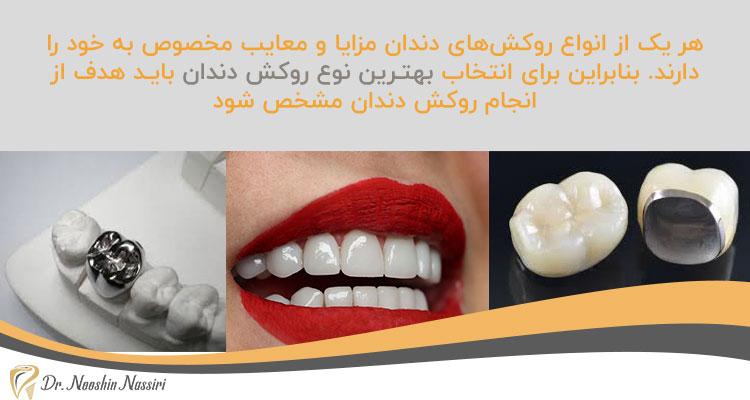 بهتـرین نوع روکش دندان