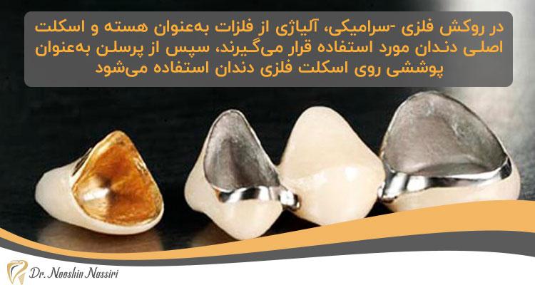 روکش دندان فلزی-سرامیکی یکی از انواع روکش های دندانی