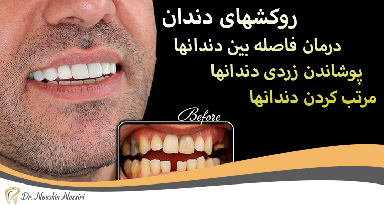 روکش دندان درمان فاصله دندانها