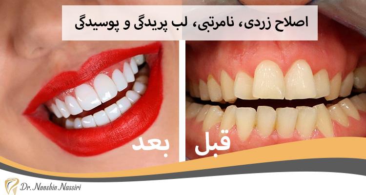 قبل و بعد از اصلاح زردی و پوسیدگی