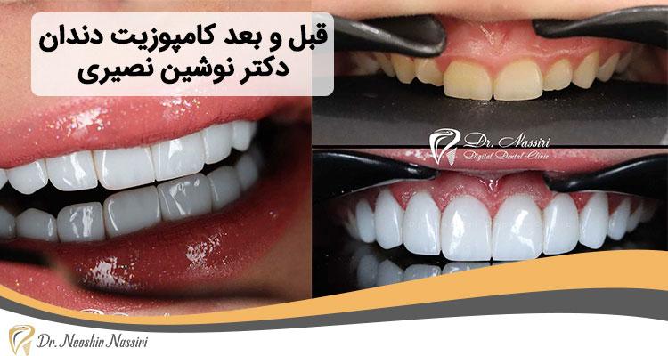 قبل و بعد کامپوزیت دندان نمونه کار از دکتر نوشین نصیری