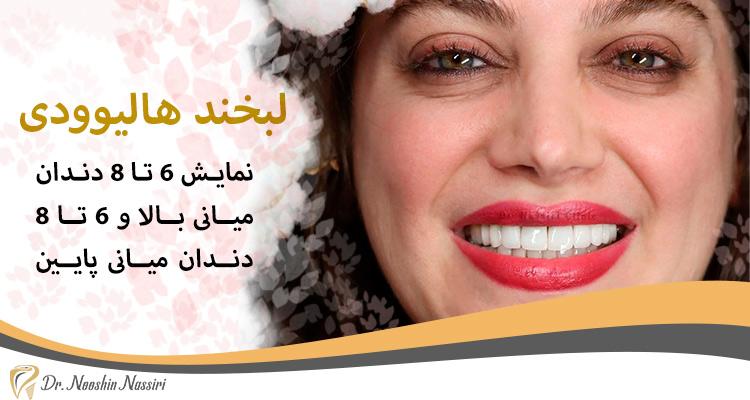 در لبخند هالیوودی 6 تا 8 دندان میانی بالا و پایین نمایان است
