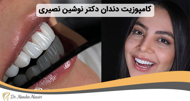 کامپوزیت دندان نمونه کار دکتر نوشین نصیری