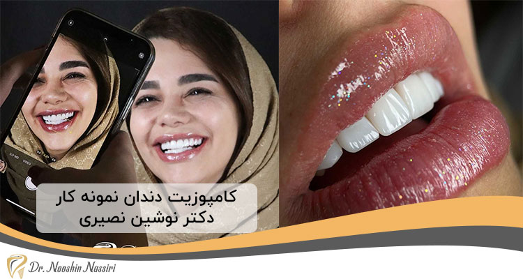 کامپوزیت ونیر در کلینیک دندانپزشکی دیجیتال