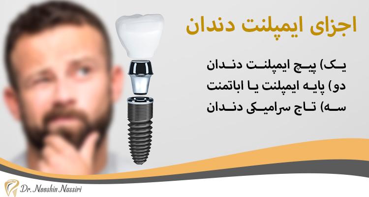 اجزای ایمپلنت دندان دکتر نصیری