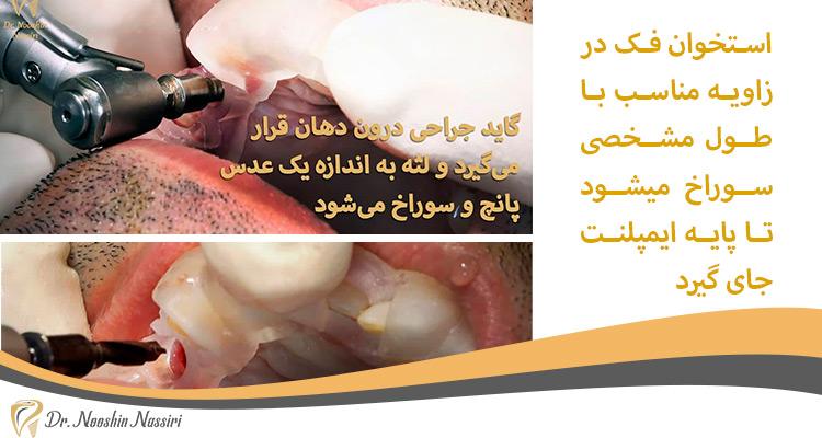 سوراخ کردن استخوان فک برای ایمپلنت دندان