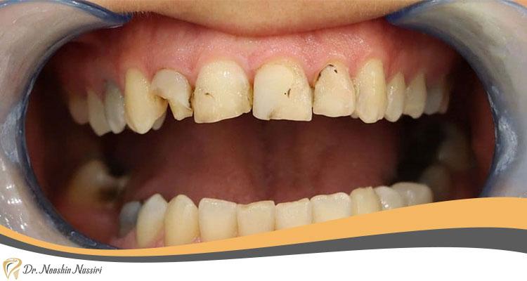 ایمپلنت دندان برای جای دندان های خالی