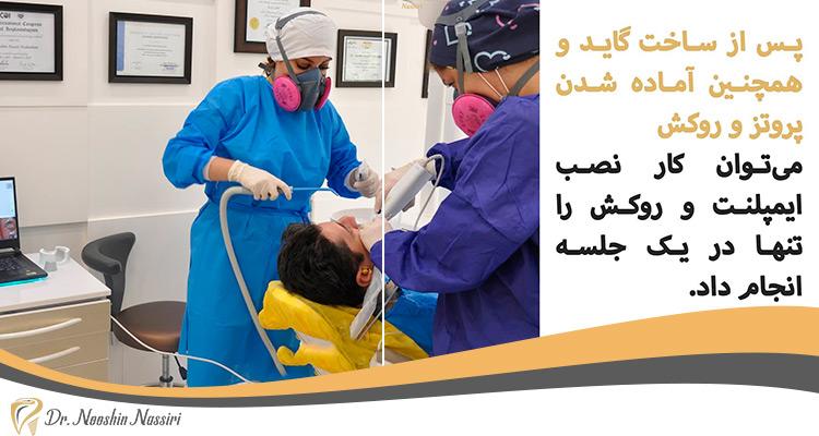 ایمپلنت دندان و استفاده از گاید