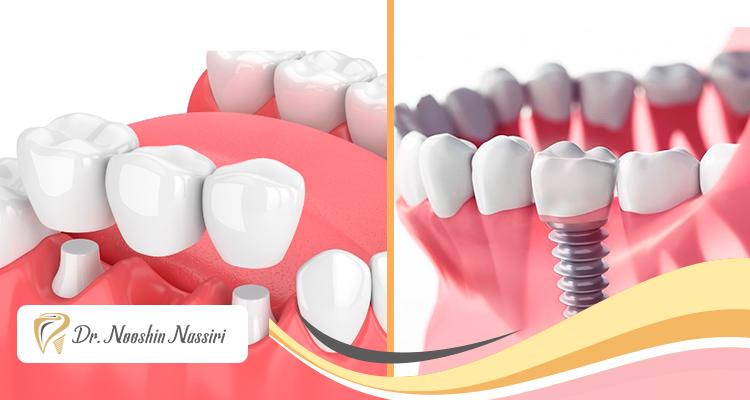 ایمپلنت یا بریج دندان