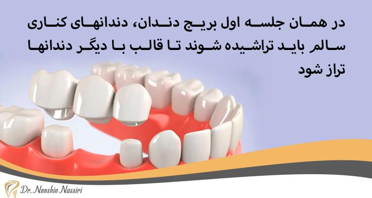 تراشیدن دندانهای کناری در بریج دندان دکتر نصیری