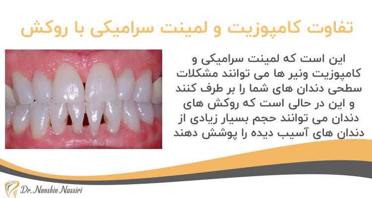 تفاوت ونیر کامپوزیت و لمینت سرامیکی با روکش دندان