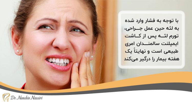 تورم لثه بعد از کاشت ایمپلنت دندانها