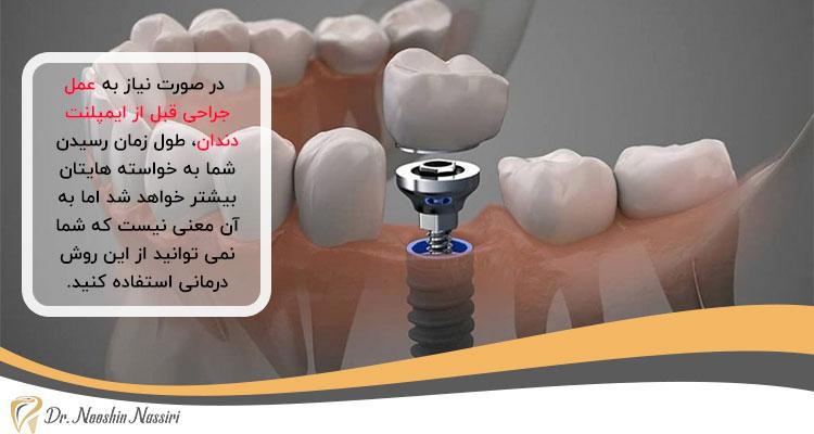 جراحی لثه قبل از ایمپلنت دندان