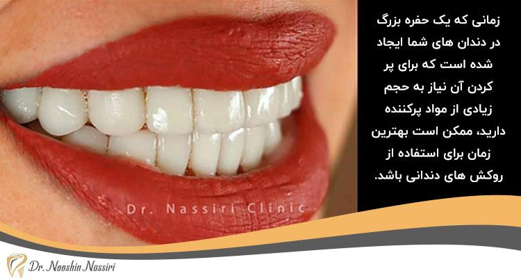 روکش های دندانی برای پوشش نقص های دندان