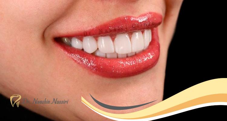 تفاوت لمینت سرامیکی و کامپوزیت ونیر با روکش دندان