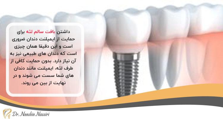 شرایط لازم برای ایمپلنت دندان روی لثه