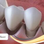 عفونت بعد از ایمپلنت دندان