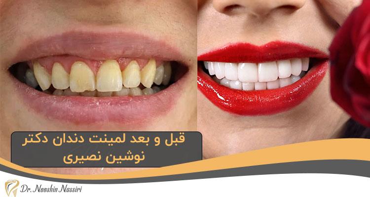 قبل و بعد لمینت دندان دکتر نوشین نصیری