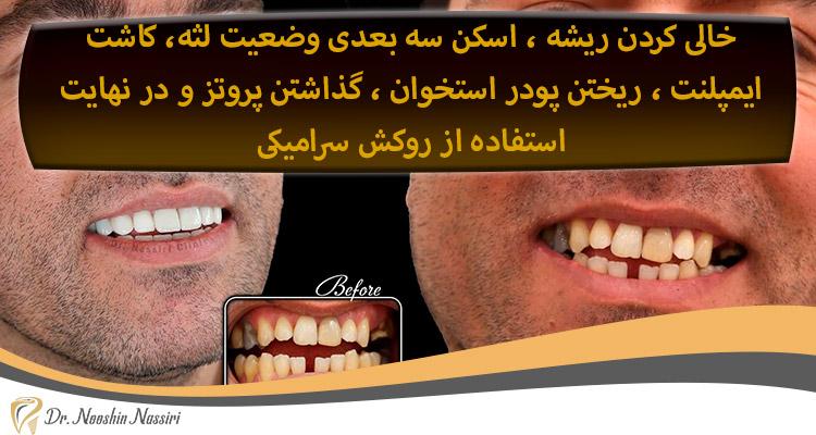 پروسه ایمپلنت دندان دکتر نصیری
