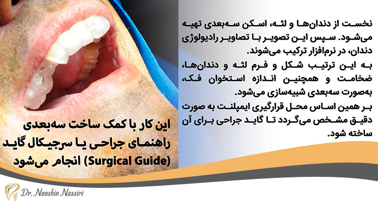 مراحل کاشت ایمپلنت دندان در مطب دکتر نصیری