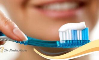مراقبت های ضروری بعد از لمینت دندان ها