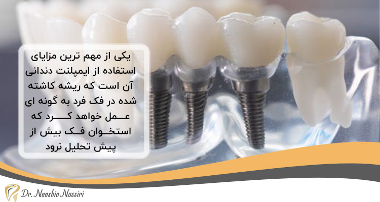 مزایای ایمپلنت دندان برای سالمندان